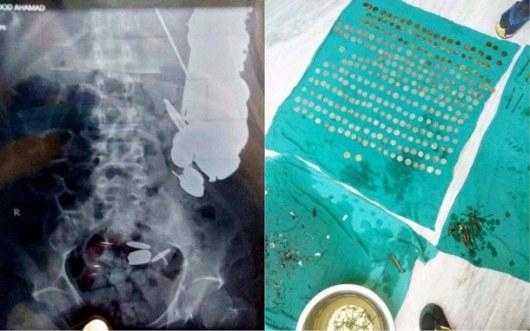 Индийские хирурги достали изпациента семь килограммов железа